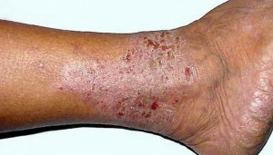 What is dangerous varicose dermatitis and how to cure it