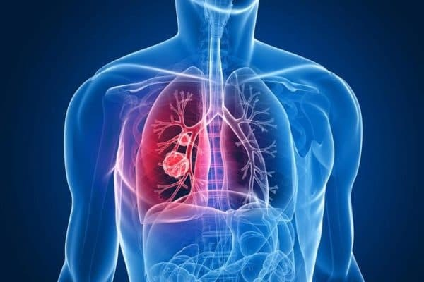 treatment of chronic bronchitis in adults