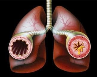 treatment of symptoms of chronic bronchitis