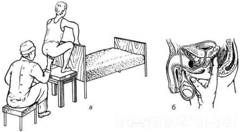 Массаж от простатита у мужчин видео эффективное лечение простатита видео