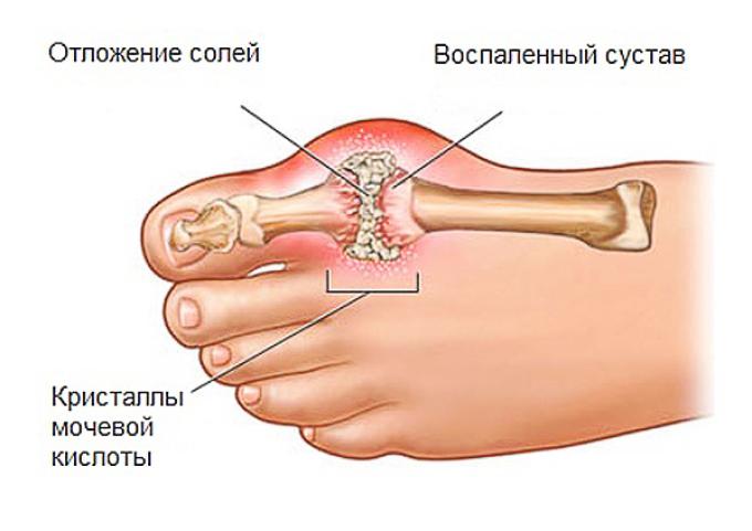 urinsyre i blodet