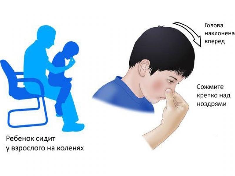 Come fermare il sangue dal naso - Humanitas Medical Care