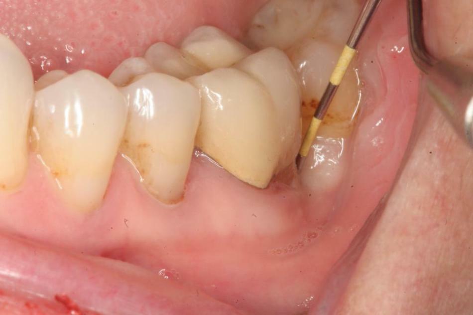 svullnad i tandköttet