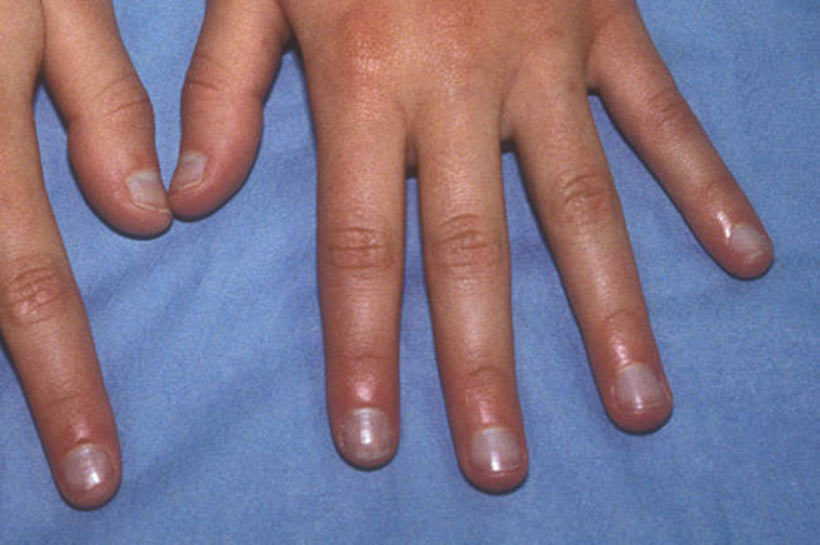 blå negle sygdom
