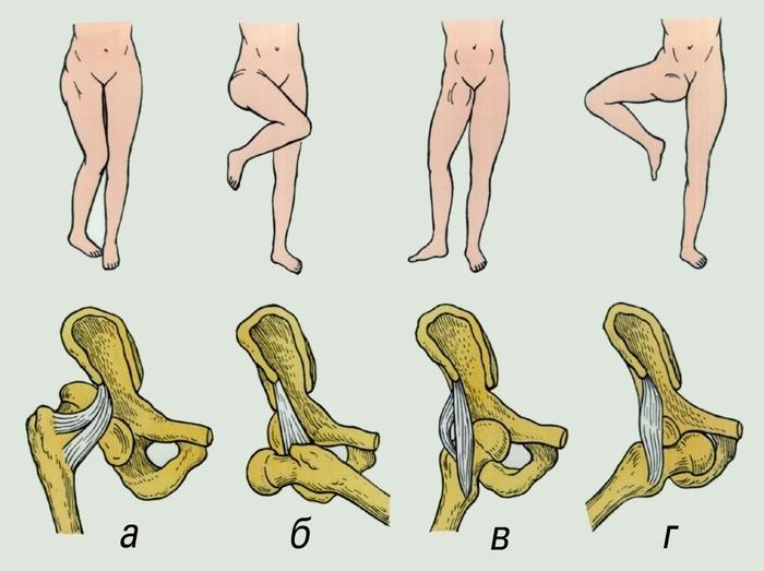 douleur hanche position assise