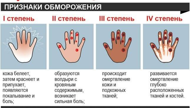 Førstehjælp til frostskadelige børn og voksne: reglerne for udførelse. Hvad skal jeg gøre, hvis ...