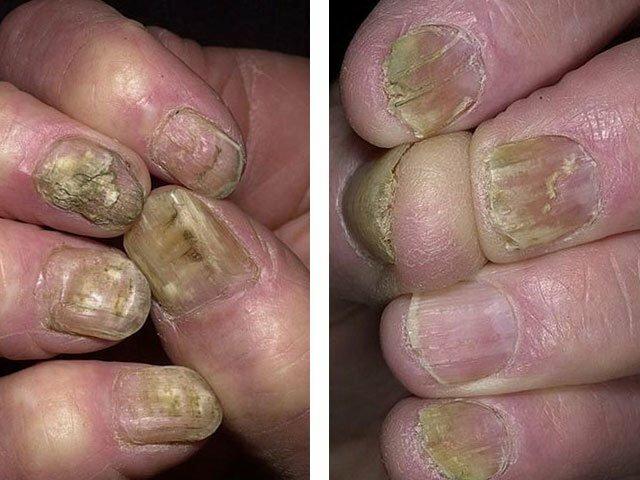 nagelsvamp på händerna