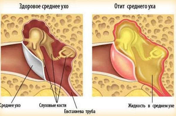 inflammation of the middle ear symptoms