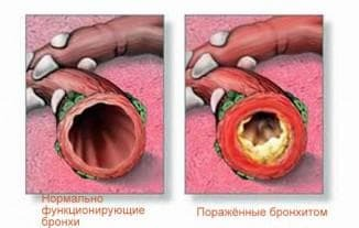 treatment of obstructive bronchitis
