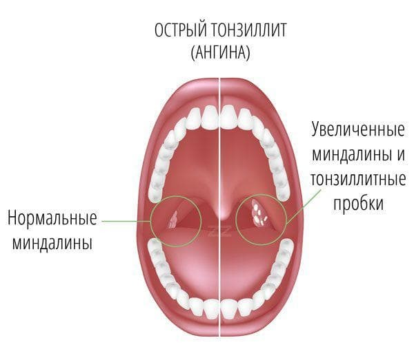 inflammation of the tonsils on one side