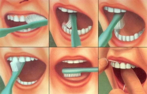 non-compliance with oral hygiene., which leads to angina