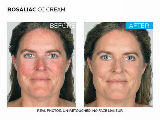 before and after applying the cream