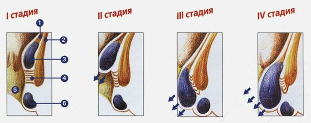 stage of hemorrhoids