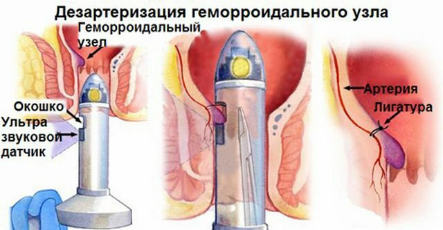 The course of deserterization of hemorrhoids