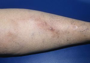 phlebitis of superficial veins