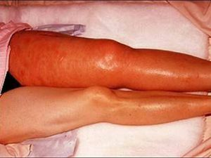 thrombophlebitis of superficial veins