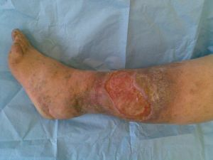 Trophic ulcer of lower leg