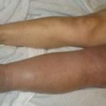 swelling of the legs with thrombosis