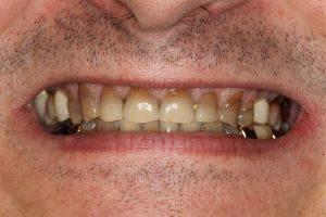 Cara Memutihkan Gigi Tetrasiklin Paling Efektif Dan Hati Hati Med