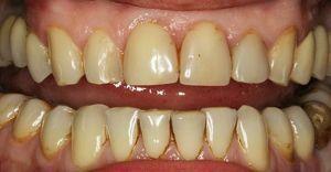 zähne sind gelb